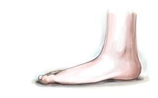 Dit zijn de 15 meest courante orthopedische aandoeningen