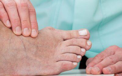 Reumatische voetklachten: wat kunnen wij doen?